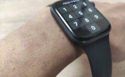 Apple Watchのかぶれ・湿疹・あせも対策を皮膚科の医師に相談してきました